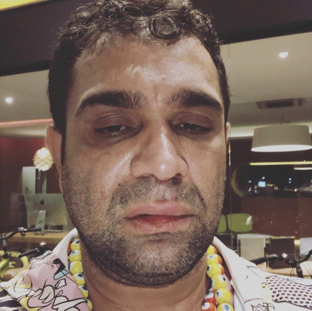 Evandro Santo leva soco depois de show e denuncia homofobia