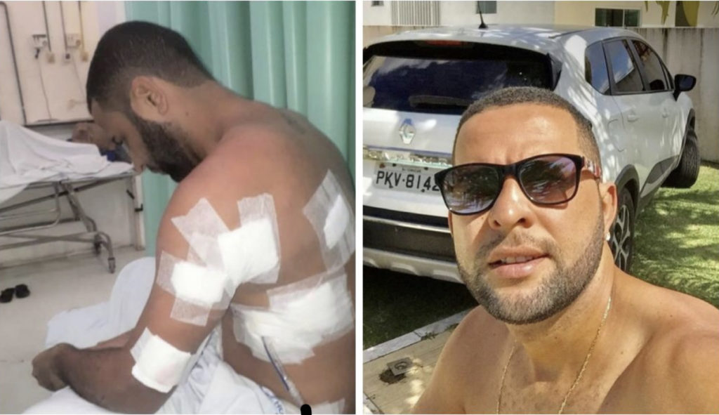 Presos policial militar e mais dois acusados de tentar matar rapaz com quatro tiros  por homofobia